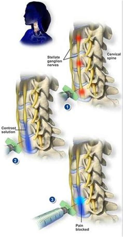 Spinal Ganglia Detox by Ganglion Cyst In The Wrist Locations Causes Symptoms