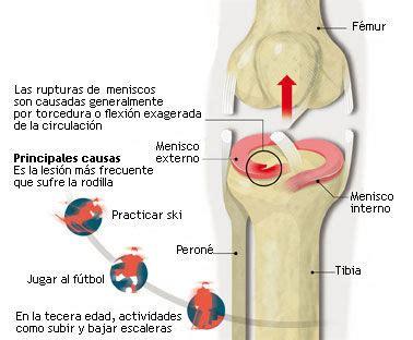 menisco interno el de francisco gilo lesiones de los meniscos