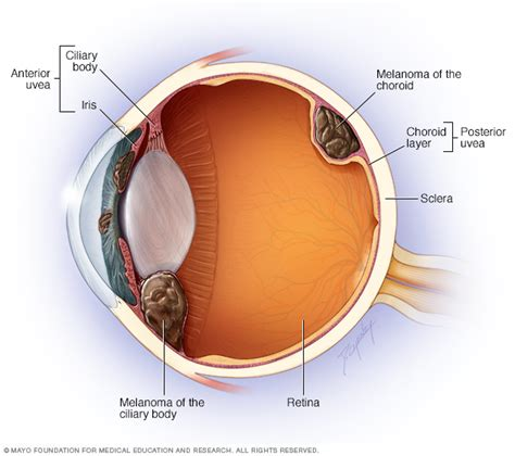 what part of the eye gives it color eye melanoma disease reference guide drugs