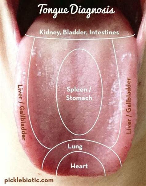 Detoxing White Tongue by Tongue Diagnosis A Helpful Self Diagnosing Technique