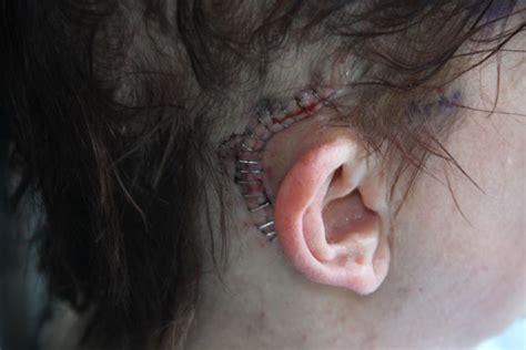best acoustic neuroma surgeons you should probably this acoustic neuroma surgery