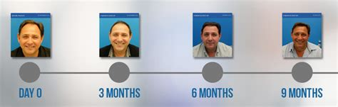 hair transplant timeline photos hasson and wong 2015 year in review hasson wong