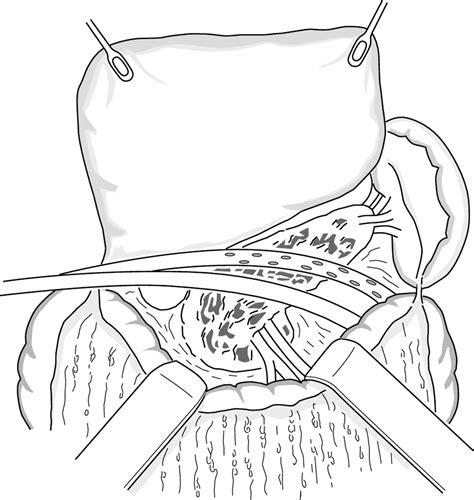 golden retriever pancreatitis surgical intervention for pancreatitis