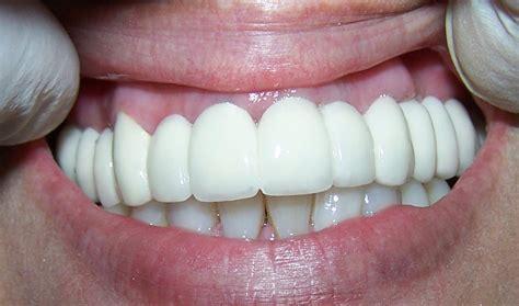 precios de fundas dentales pr 243 tesis fijas coronas dentales clinica dental sonrisalud