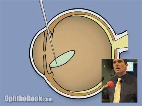 couching cataract surgery cataract presentation video timroot com