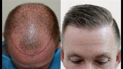 what does 2000 hair gradt look like hair transplant results after 1 year youtube