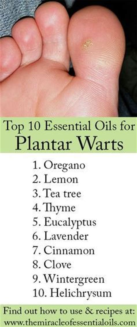 25 best ideas about foot warts on planters