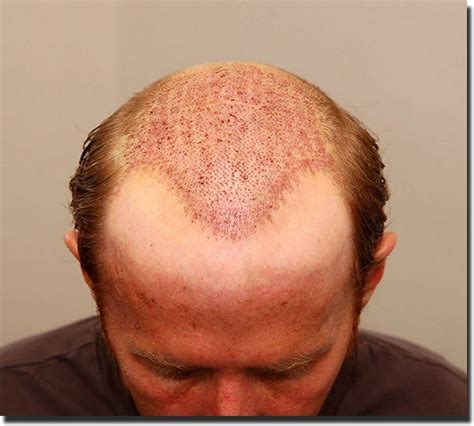 correct haircut transplant how is hair transplanted hairstylegalleries com