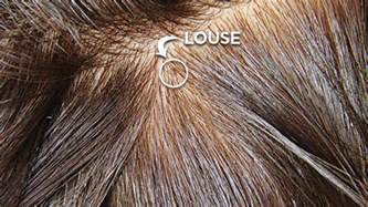color of lice lice screening options lice clinics of america