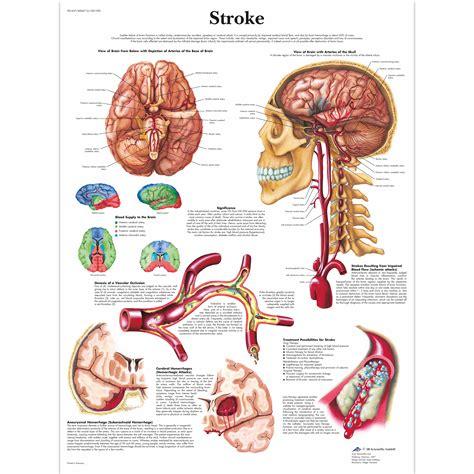 diagram poster anatomical charts neurological posters pathology