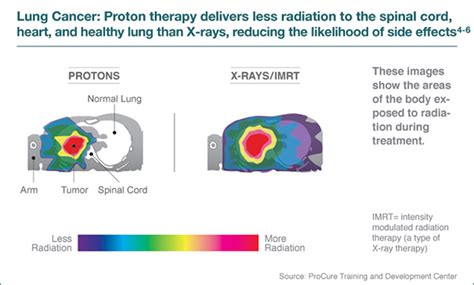 Proton Therapy Cancer Treatment by Proton Therapy For Lung Cancer Seattle Cancer Care Alliance