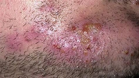 ringworm treatment the counter the counter ringworm treatment ringworm on scalp ringworm on v 236 deo