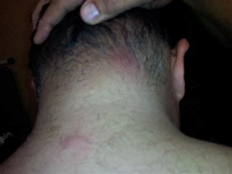 bed bug bites on neck bed bug bites on back of neck and back picture of