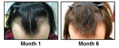 before and after widows peak best treatment for widow s peak