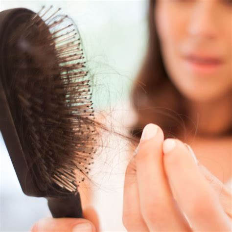Types Of Hair Loss In Females by The 25 Best Ideas About Androgenetic Alopecia On