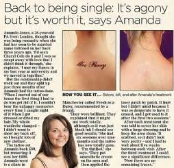 tattoo removal like megan fox many are beginning to