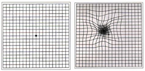 layout grid meaning definition of amsler grid