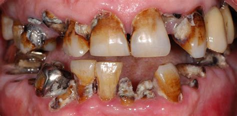 rotten teeth rotten teeth pictures symptoms causes treatment diseases pictures