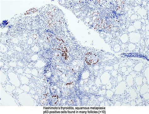 Melan A Stains Pathology Outlines by Pathology Outlines P63