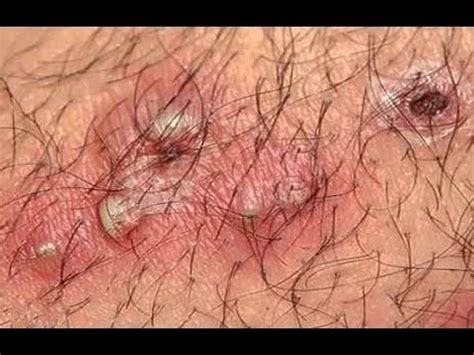 best way to draw out an ingrown hair ingrown hairs removal tool best way how to remove your
