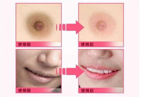 Obat Alami Pemerah Bibir Yang Hitam pemerah bibir cepat tanpa efek sing obat pemutih wajah