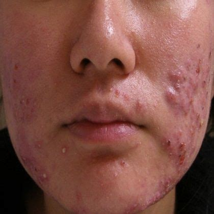 image cystic acne treatment home remedy