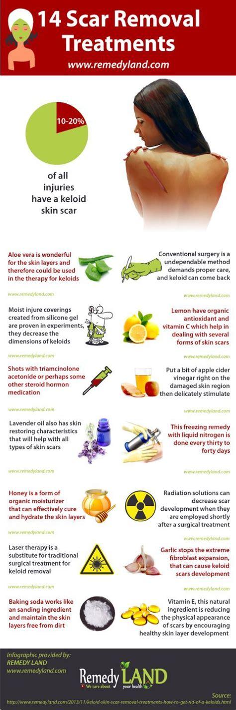 best scar medicine 39 best keloids images on remedies