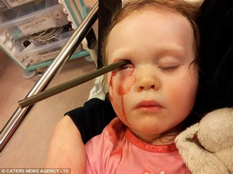 what color is your blood before it hits the air toddler wren bowell survives after falling on pencil which