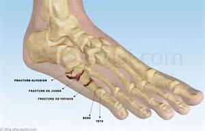 actualit 233 s fractures osseuses