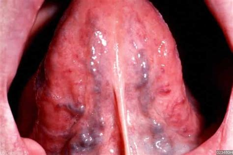 black spot on s tongue black spots on tongue small pictures causes std get rid treatment home