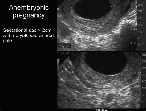 gestazionale vuota gravidanza la sindrome dell uovo chiaro periodo fertile