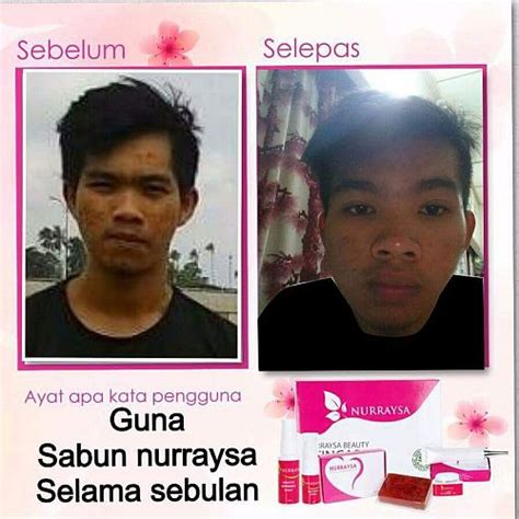 Sabun Muka Remaja sabun jerawat lelaki