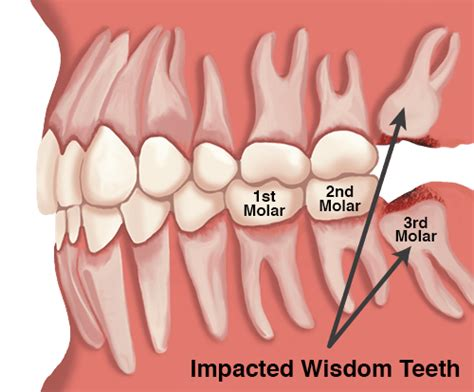 Today at 615 895 2363 to schedule your wisdom teeth consultation