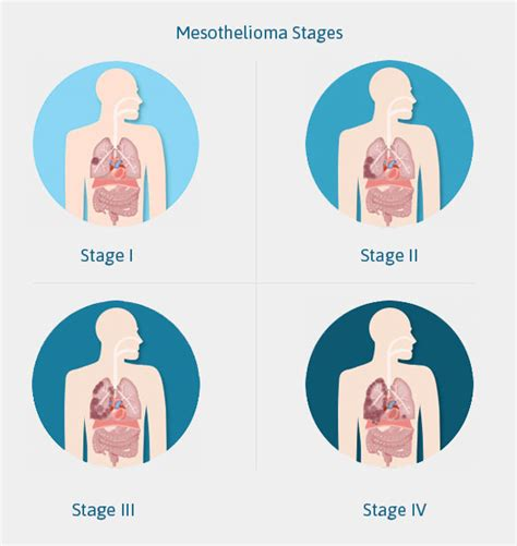 Pleural Mesothelioma Stages the 4 stages of mesothelioma popular staging systems