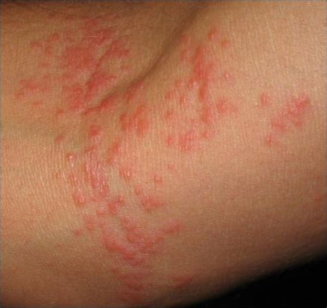 itchy skin itchy skin rash bumps causes symptoms treatment pictures diseases pictures