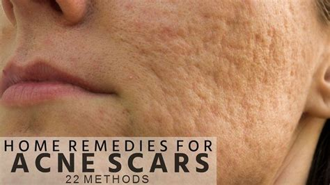 home remedies for acne scars on 22 methods