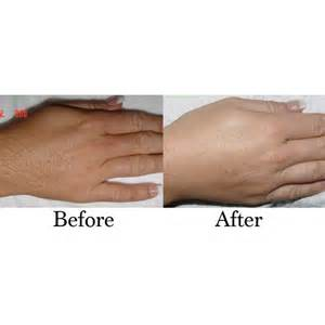 laser hair removal arms hands 8 options cutera