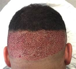 hair transplant for black fue hair transplant westminister clinic