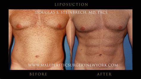 lipo after c section male liposuction in nyc