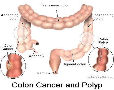 Can Colon Cancer Be Detected In Stool Test by Gd Evolution Bowel Cancer Symptoms Prevention Treatments
