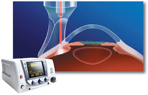 diode laser for glaucoma diode laser surgery glaucoma 28 images gbox 15 vet laser therapy or surgery probe 15w 810