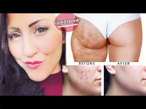 rimedi cellulite sedere 44 best and fabulous and tips on where to hide your