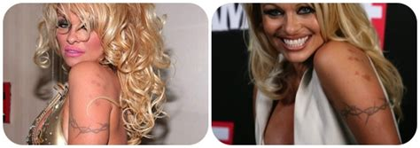 pam anderson tattoo removal tattoojpg pictures to pin on