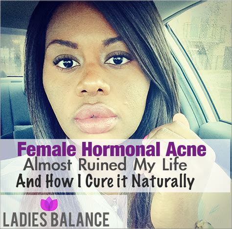 How To Cure Acne Naturally by Read This To Cure Hormonal Acne Naturally