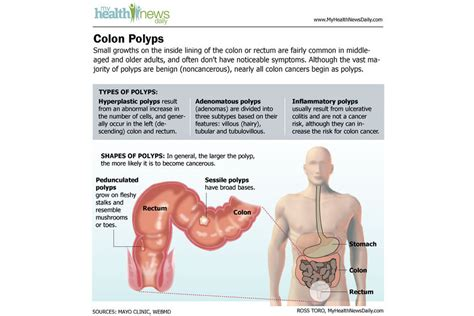 Blood In Your Stool During Chemo by Colon Cancer Causes Symptoms And Treatments
