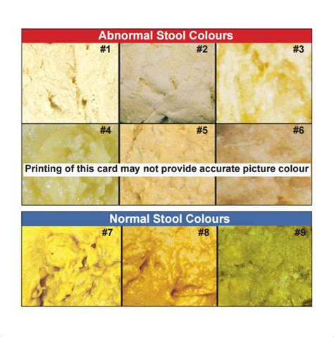 sle stool color chart 8 exle format