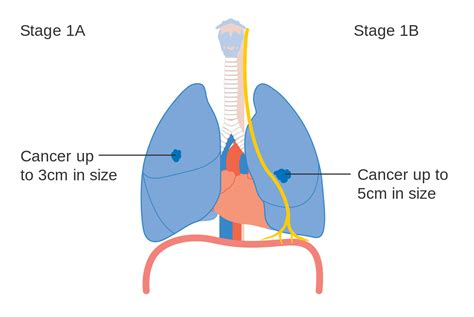 cancer diagram file diagram showing stage 1a and 1b lung cancer cruk 197