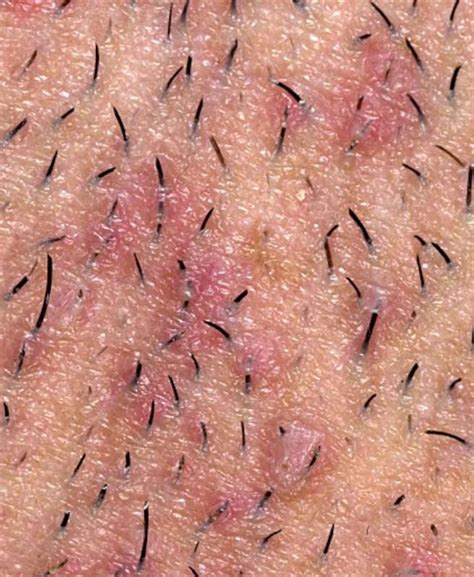 how to get rid of ingrown pubic hair 15 steps with pictures 14 shaving tips and remedies to get rid of razor bumps fast