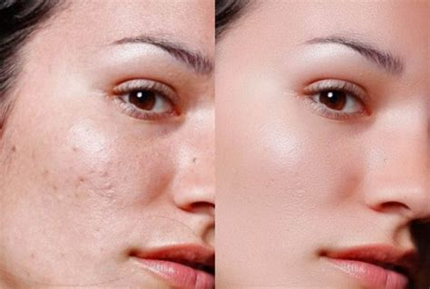 Acne Clear how to clear up acne overnight a proven method to clear skin
