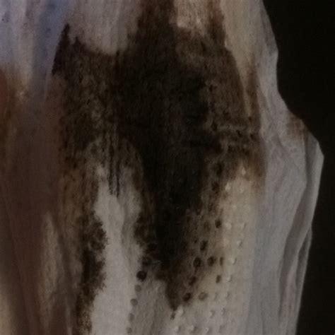implantation bleeding     dark period